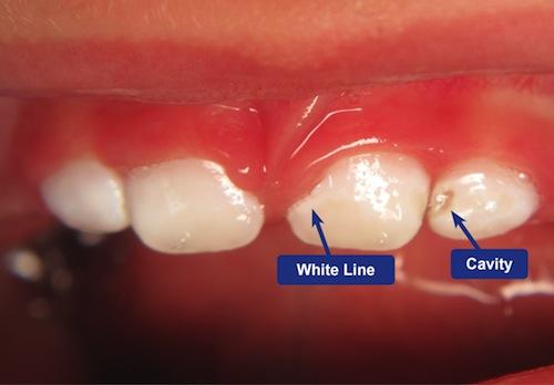 کرم خوردگی و پوسیدگی دندان