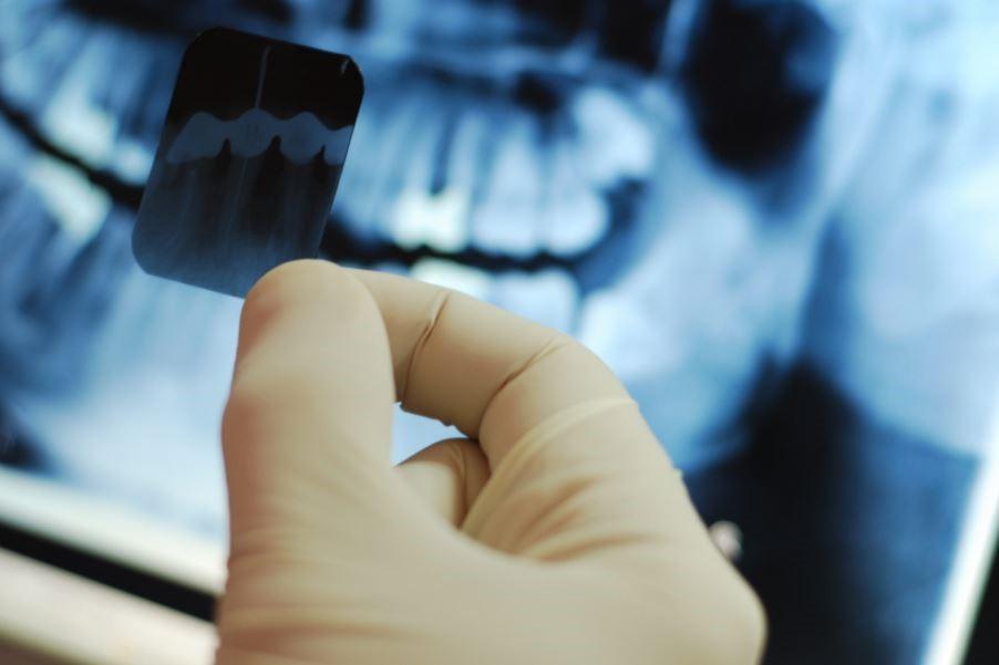 عکس برداری یا رادیوگرافی دهان و دندان