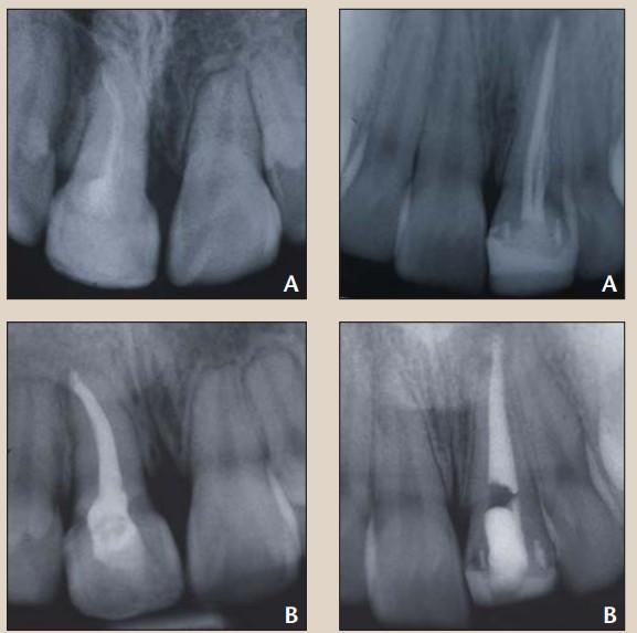 بلیچینگ داخلی دندان