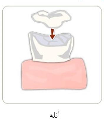 پر کردن دندان با کامپوزیت همرنگ دندان