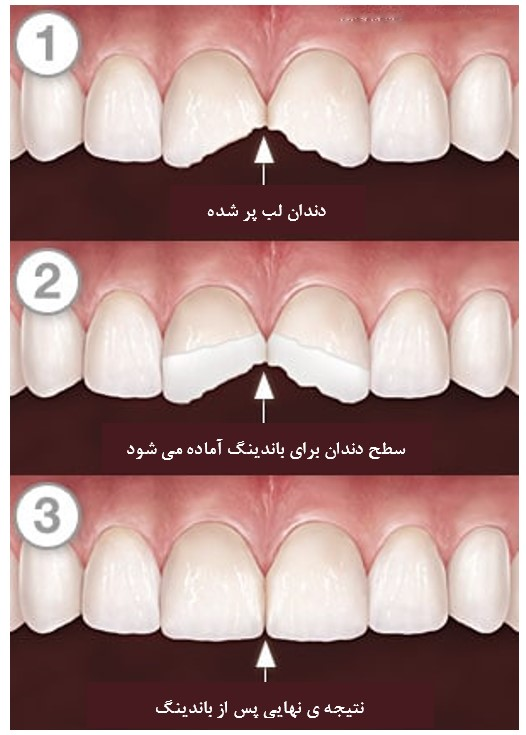 ترمیم دندان شکسته یا لب پر شده