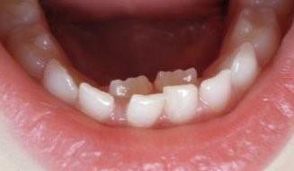نیفتادن دندان شیری کودکان