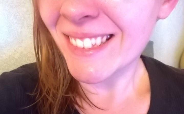 دندان میخی شکل