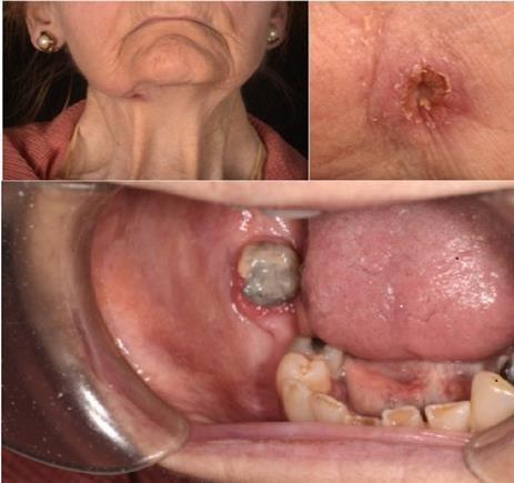 سینوس دندان