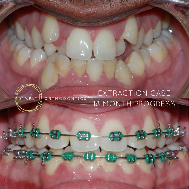 کشیدن دندان طی درمان ارتودنسی