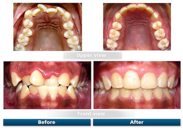 کجی و نامرتبی و شلوغی دندان ها