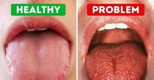 خشکی دهان و اثر منفی روی دندان
