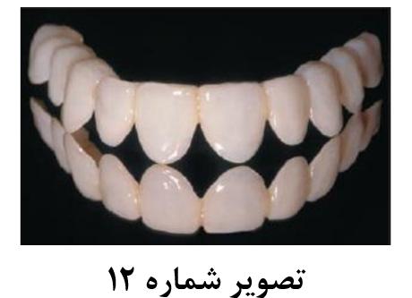فرایندهای مختلف افزایش طول تاج دندان