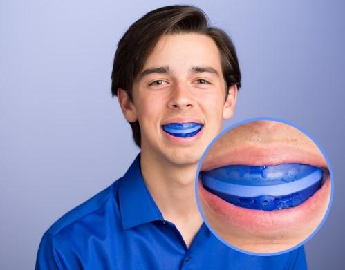 محافظ دندان یا گارد دندان