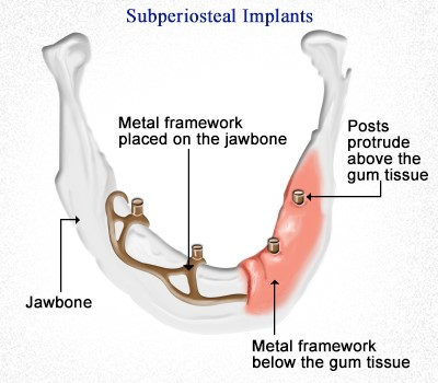 انواع ایمپلنت های دندانی