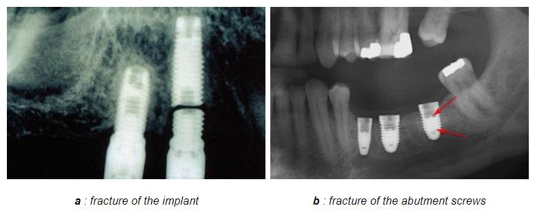 مشکلات ایمپلنت دندانی