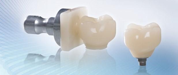 روکش پیچ شونده یا چسب شونده ایمپلنت دندانی
