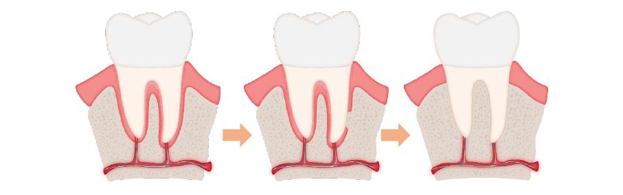 دندان فک جوش یا انکیلوز دندان