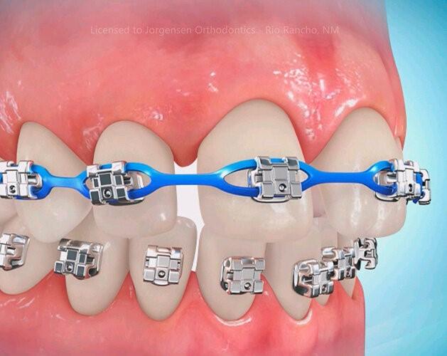 دیاستم یا فاصله بین دندانی