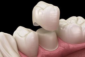 شل شدن روکش دندانی