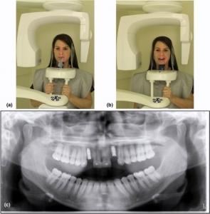 رادیوگرافی پانورامیک دندانپزشکی